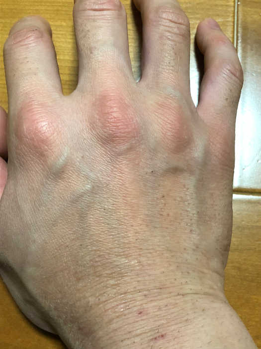 右手脱毛2回目1週間後の画像