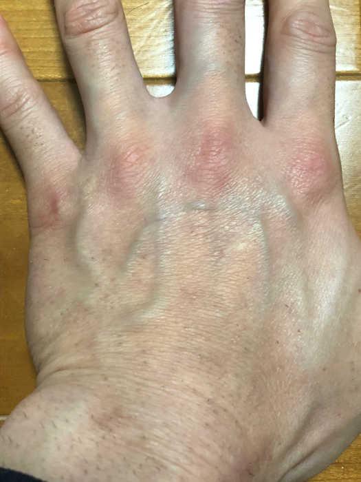 左手脱毛2回目1週間後の画像
