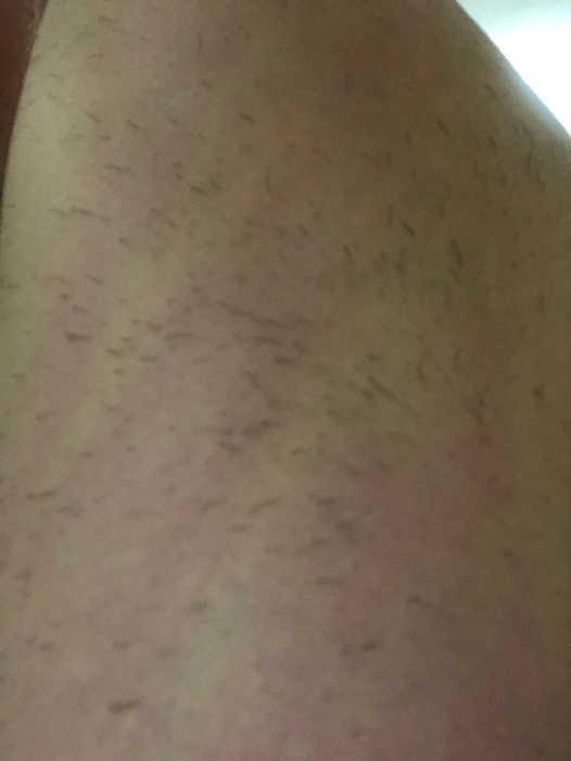 左肩脱毛1回目1週間後の画像