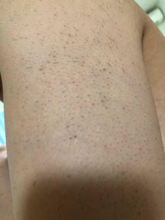 左肩脱毛2回目1週間後の画像