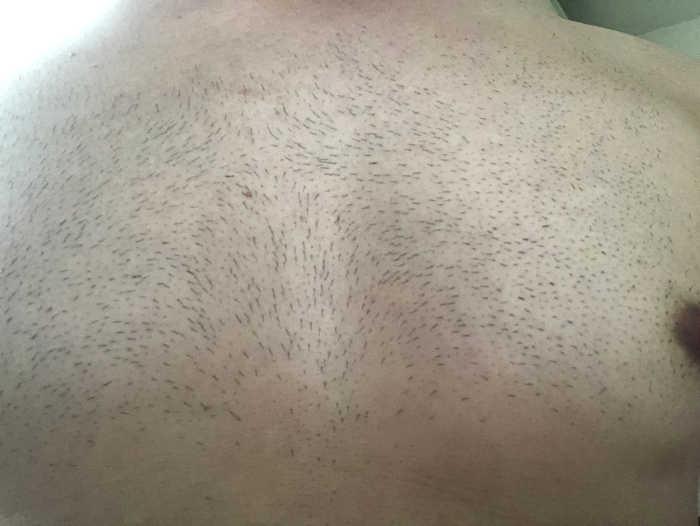胸脱毛前の画像