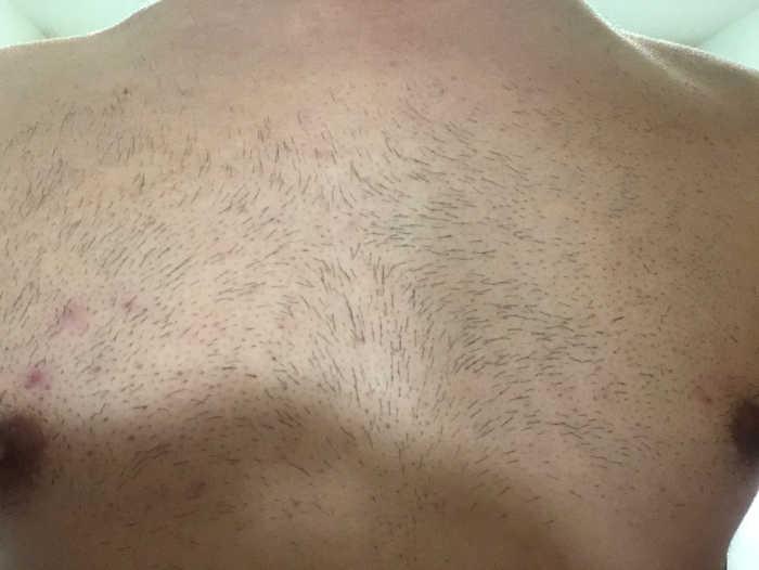 胸脱毛1回目1週間後の画像
