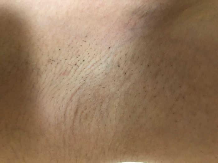 左肩脱毛3回目1週間後の画像