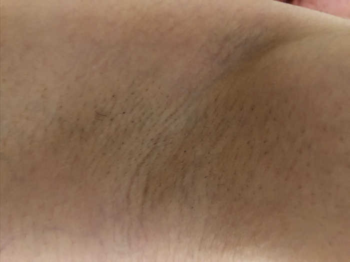 左脇脱毛4回目1週間後の画像