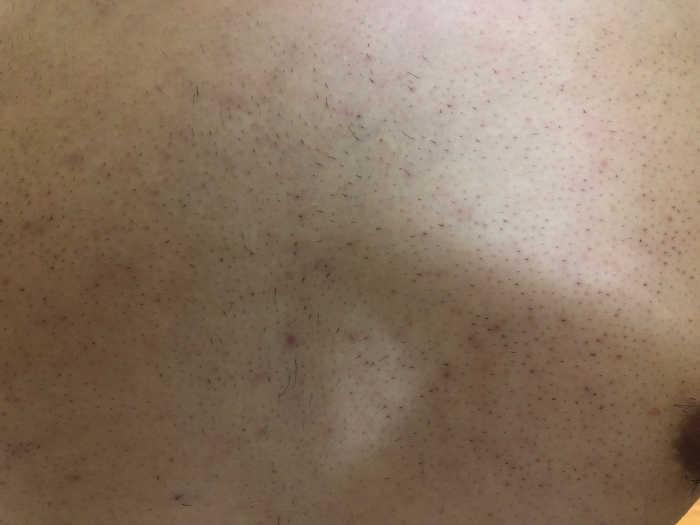 胸毛4回目脱毛前の画像
