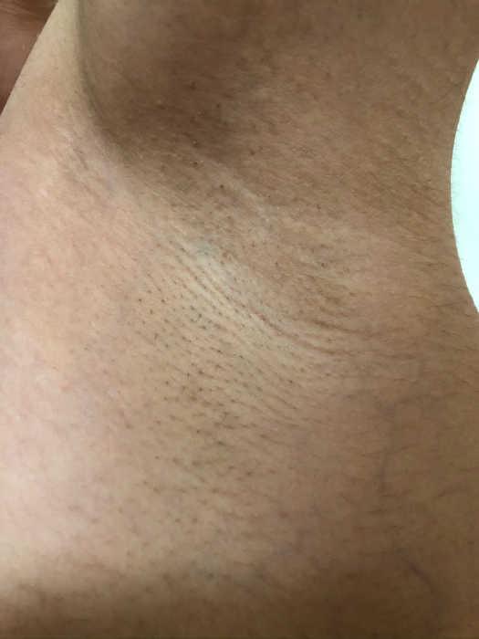 左脇脱毛5回目1週間後の画像