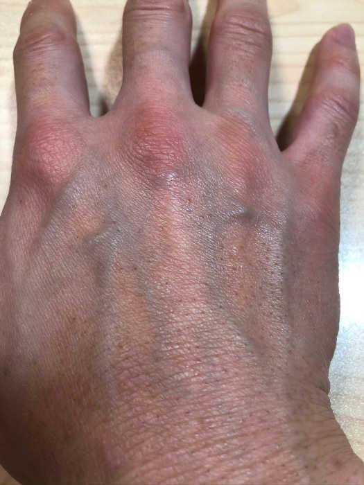 右手脱毛6回目1週間後の画像
