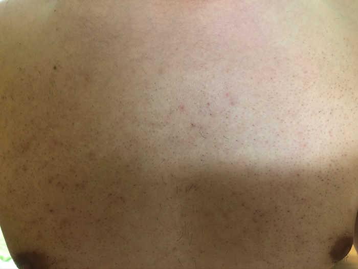 胸5回目脱毛前の画像