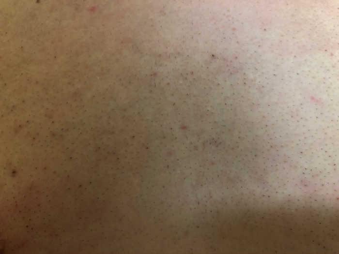 胸脱毛5回目1週間後の画像