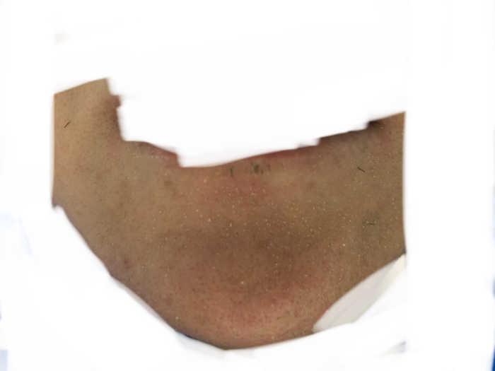 ヒゲ4回目脱毛前の画像