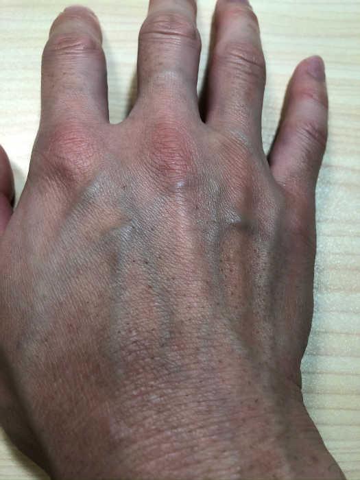 右手脱毛7回目1週間後の画像