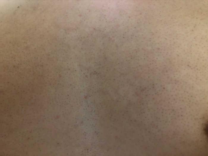 胸6回目脱毛前の画像