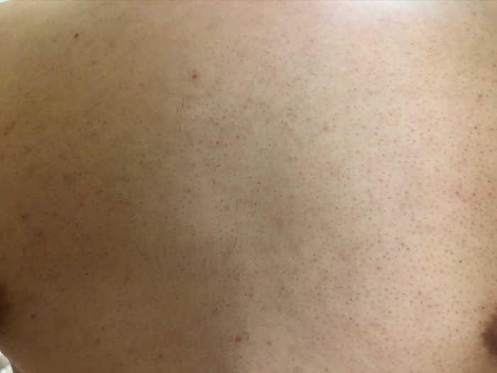 胸7回目脱毛前の画像