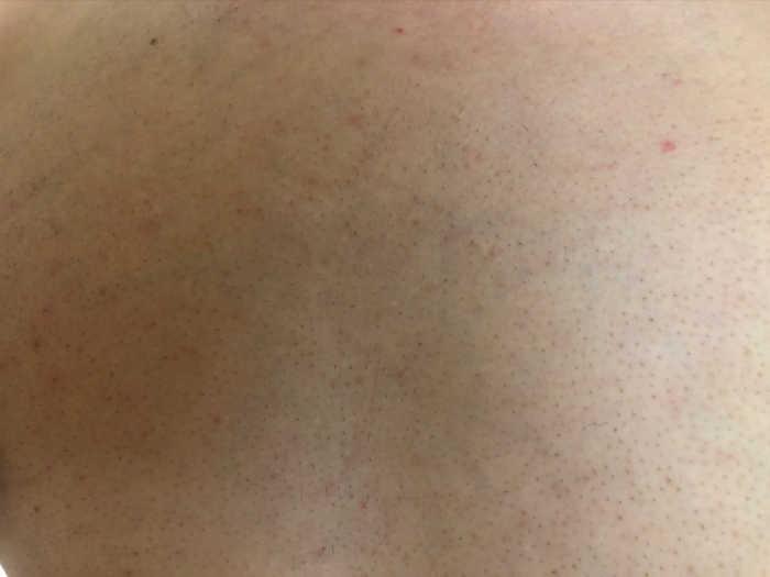 胸脱毛7回目1週間後の画像
