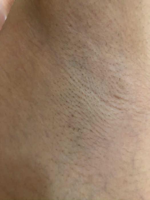 左脇脱毛8回目1週間後の画像