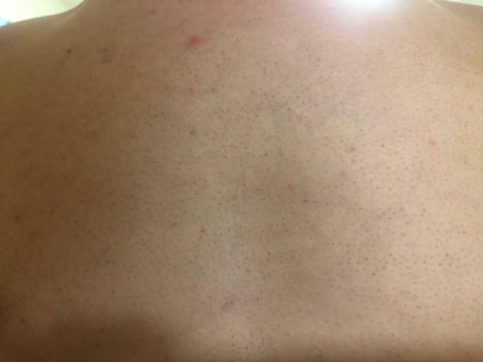 胸脱毛8回目1週間後の画像