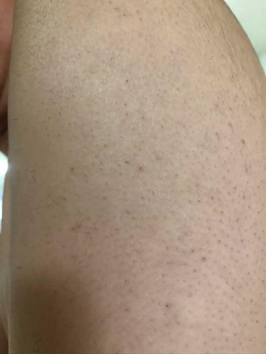 左肩脱毛9回目1週間後の画像