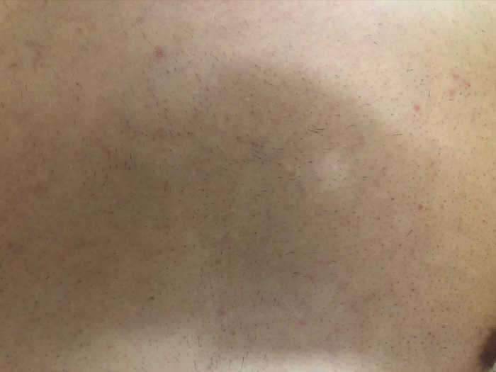 胸9回目脱毛前の画像