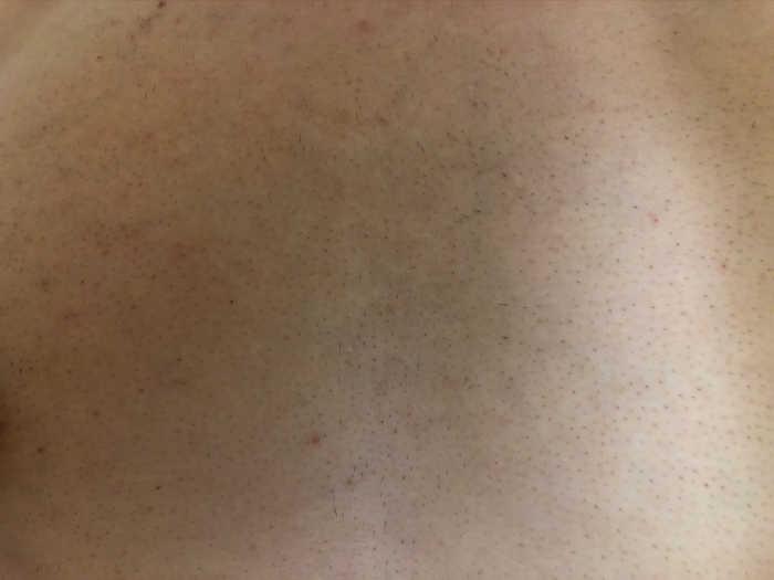 胸脱毛9回目1週間後の画像