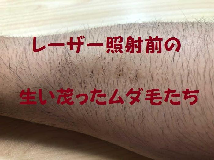 レーザー照射前の腕の毛の画像